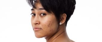 What Causes Acne—and How to Put a Stop to It