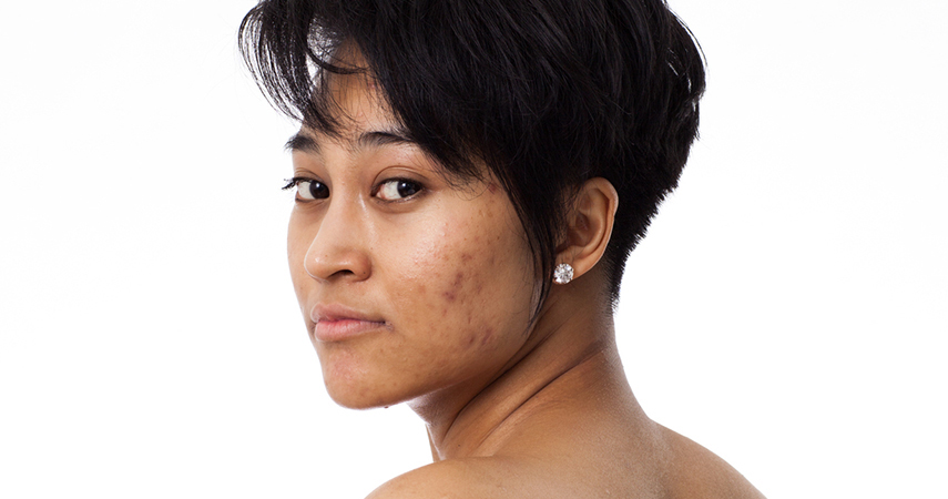 Wondering how to get rid of acne can persist into adulthood.