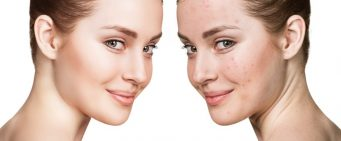 Four Effective Ways to Remove Acne Scars