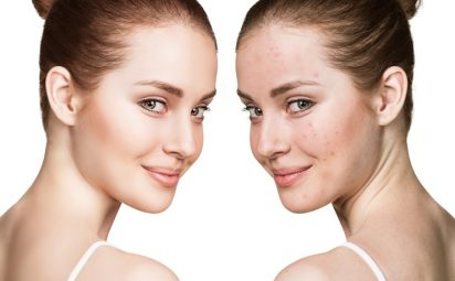 woman before and after with faded acne scars