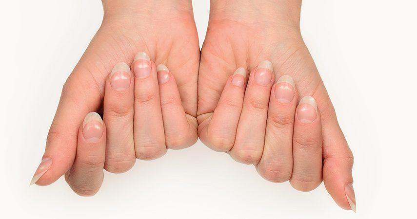 woman with fingers bent inwards showing white spots on her nails